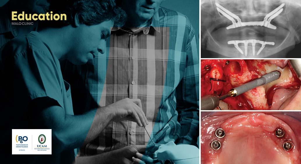 All-on-4® Surgical Protocol – High Skilled & Zygoma Maxilla Rehabilitation