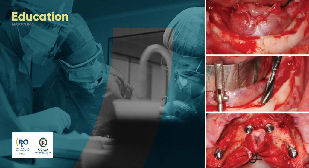 All-on-4® Surgical Protocol Clinical Course