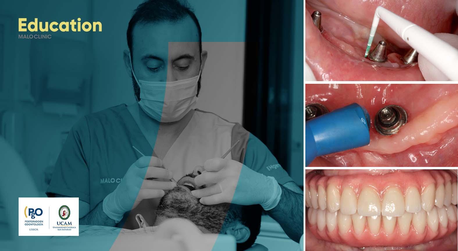 Implant Maintenance_ME_NewBranding_A