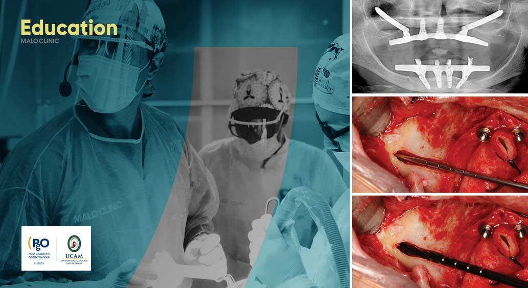 Zygoma Clinical Residency – MALO CLINIC Protocol