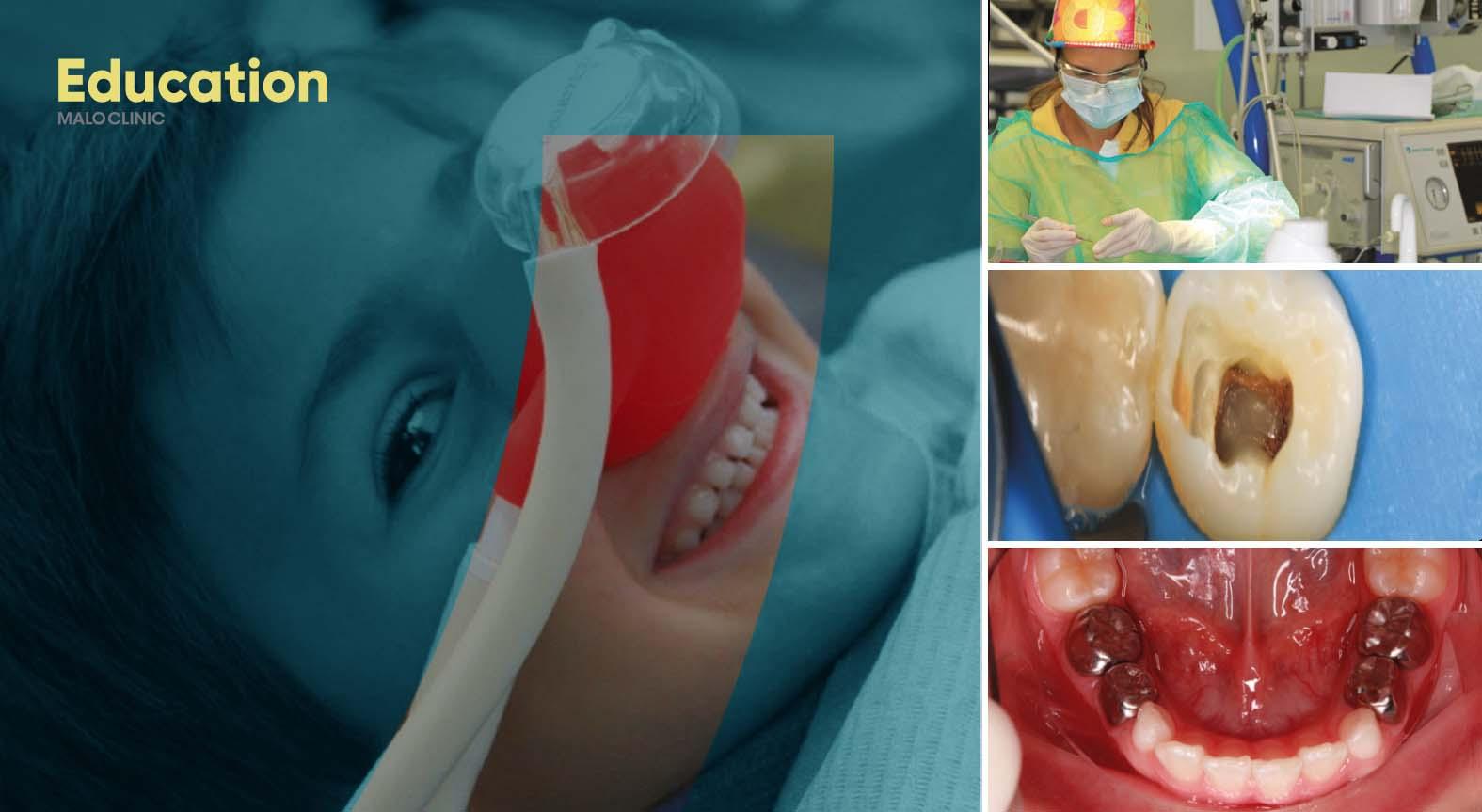 Curso Intensivo de Odontopediatria (Teórico + Prático)